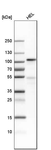 Transferrin Receptor Antibody in Western Blot (WB)
