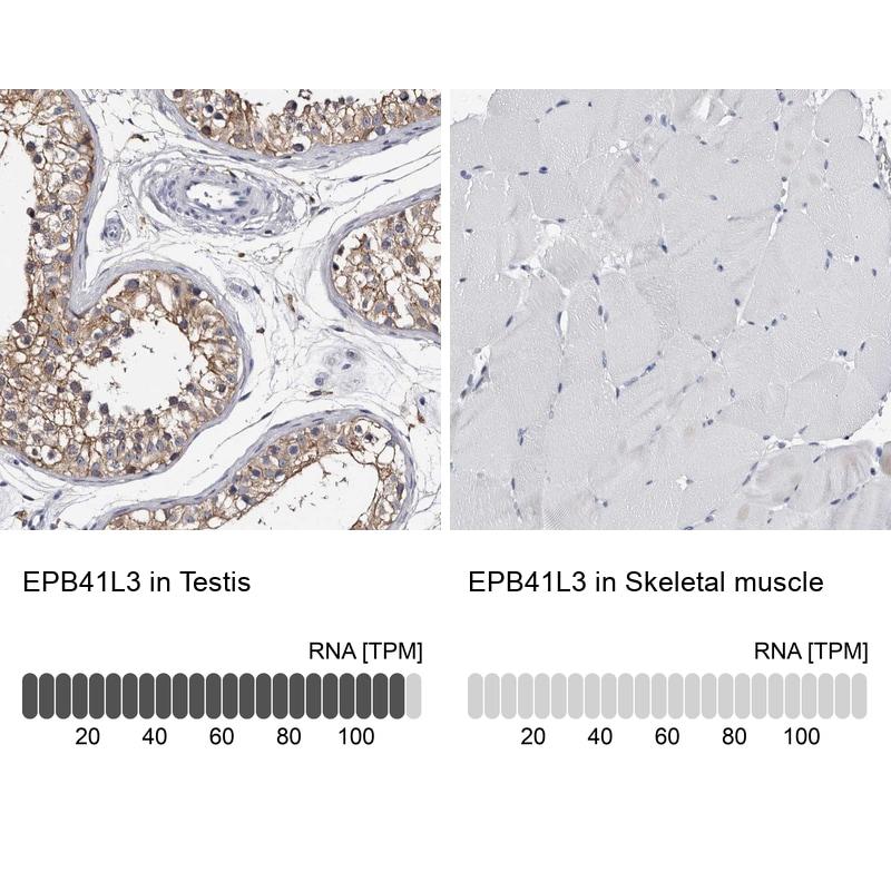 EPB41L3 Antibody in Relative expression