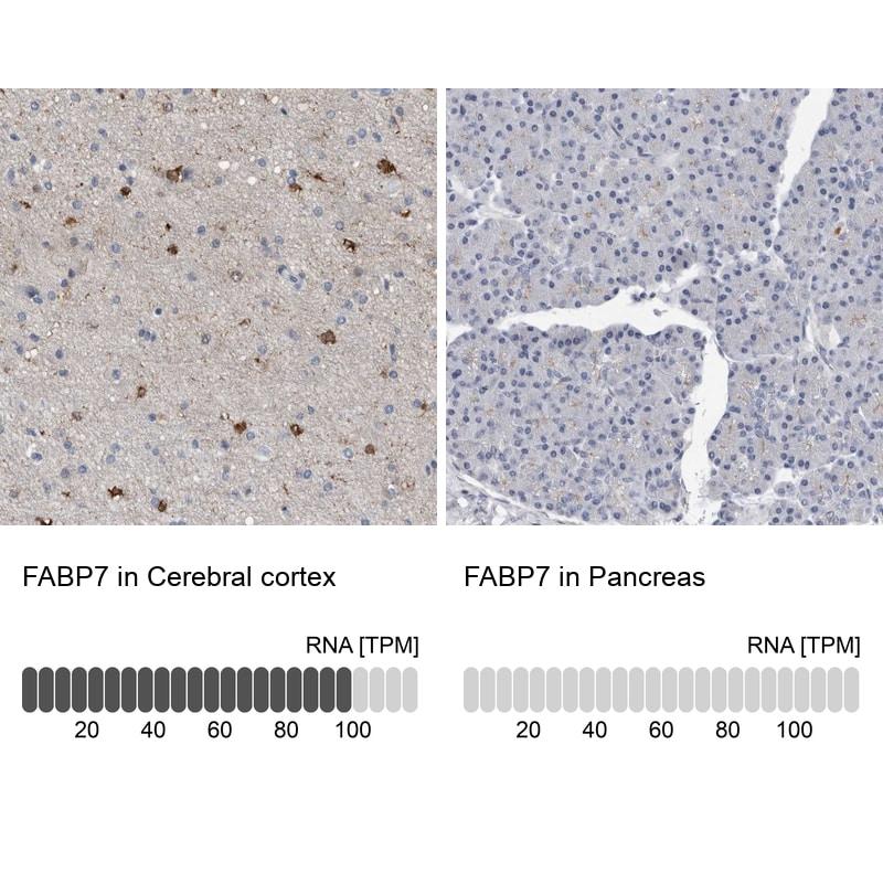 FABP7 Antibody in Relative expression