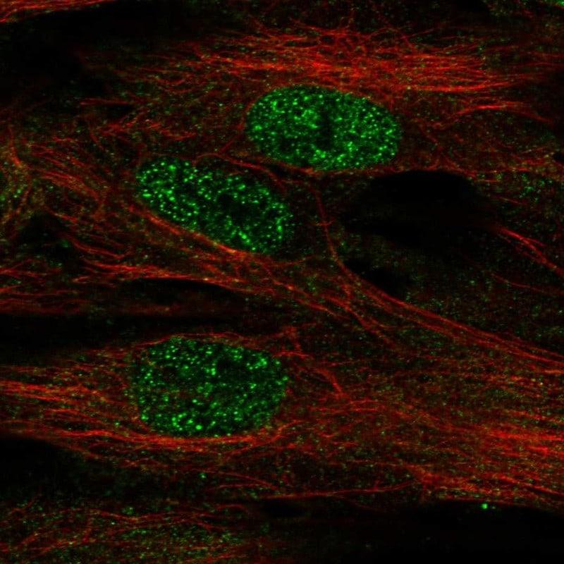 FOXF1 Antibody in Immunofluorescence (IF)