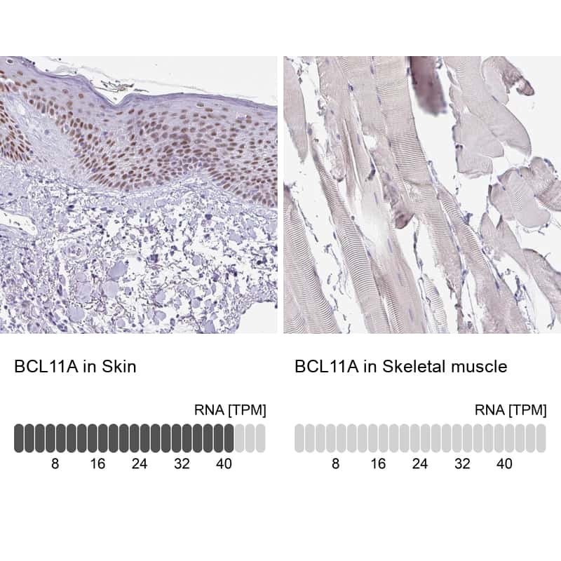 BCL11A Antibody in Relative expression