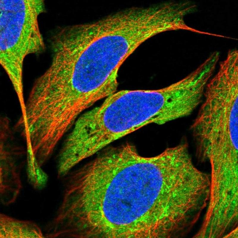 SMYD2 Antibody in Immunofluorescence (IF)