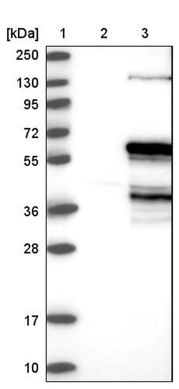 FBXO5 Antibody in Western Blot (WB)