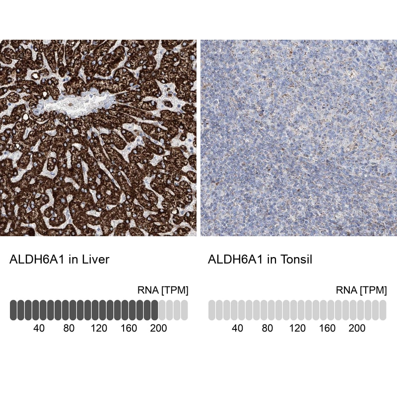 ALDH6A1 Antibody in Relative expression