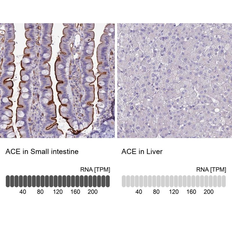 ACE Antibody in Immunohistochemistry (IHC)