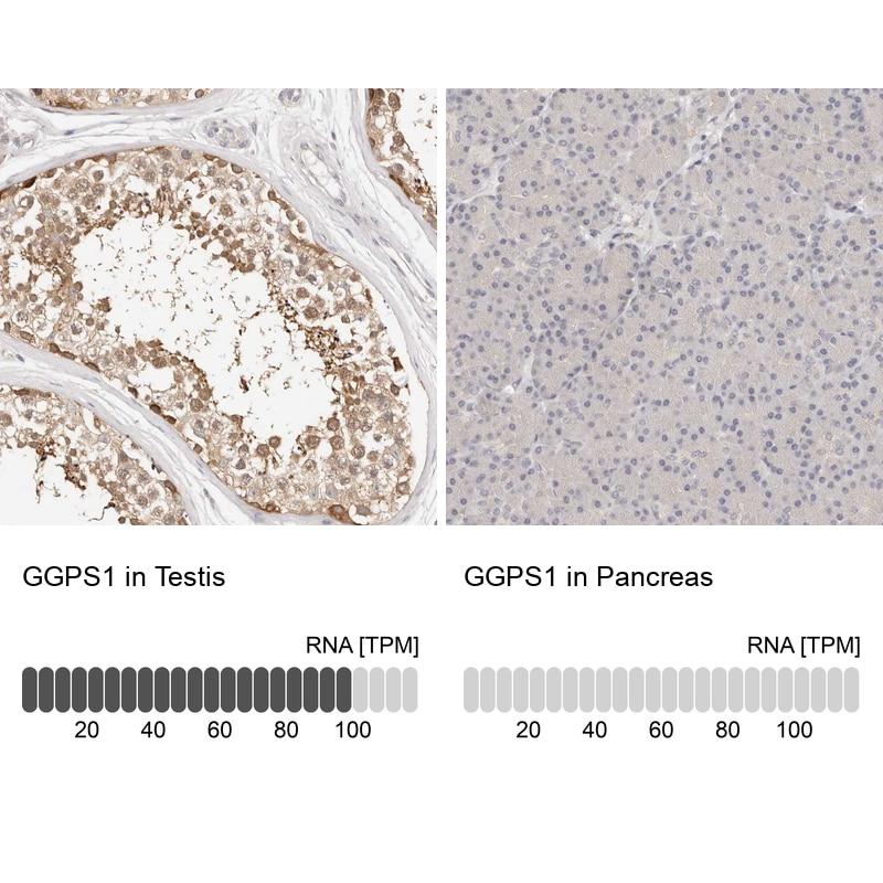 GGPS1 Antibody in Relative expression
