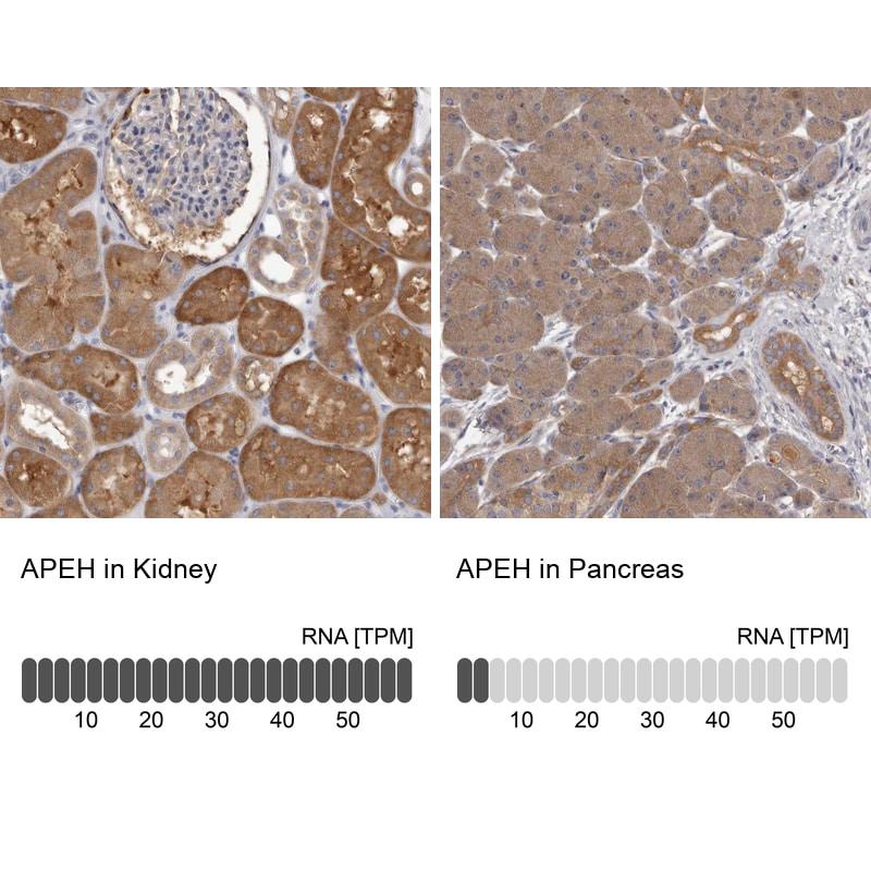 APEH Antibody in Immunohistochemistry (IHC)