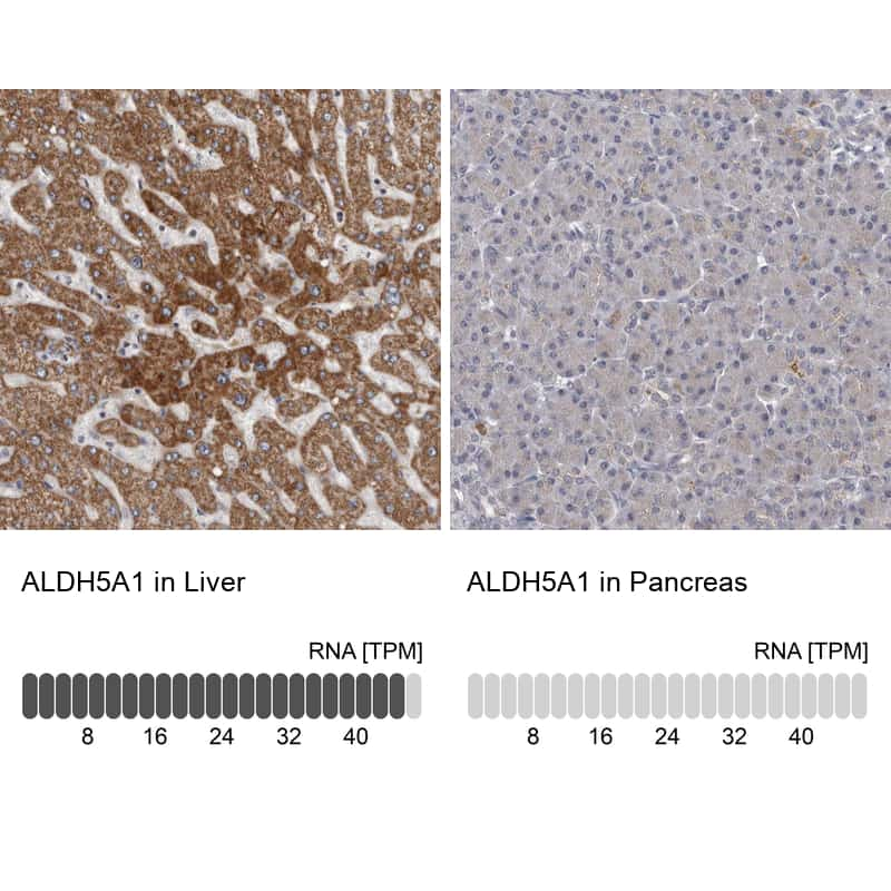 ALDH5A1 Antibody in Relative expression