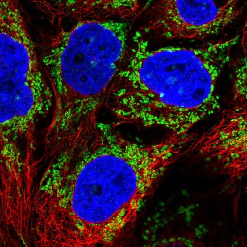 ALDH5A1 Antibody in Immunocytochemistry (ICC/IF)