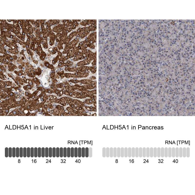 ALDH5A1 Antibody in Immunohistochemistry (IHC)
