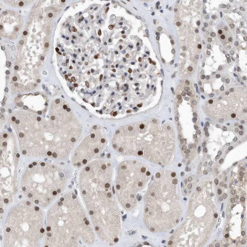 KPNB1 Antibody in Immunohistochemistry (IHC)