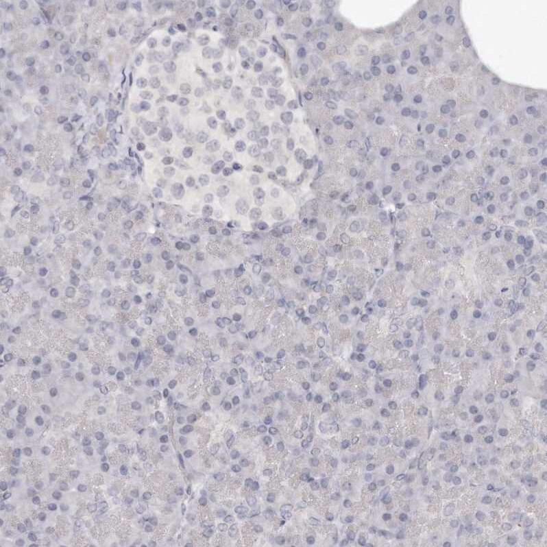 SOX4 Antibody in Immunohistochemistry (IHC)