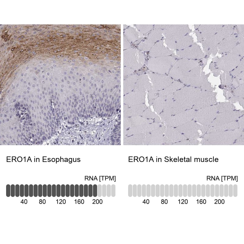 ERO1L Antibody in Immunohistochemistry (IHC)