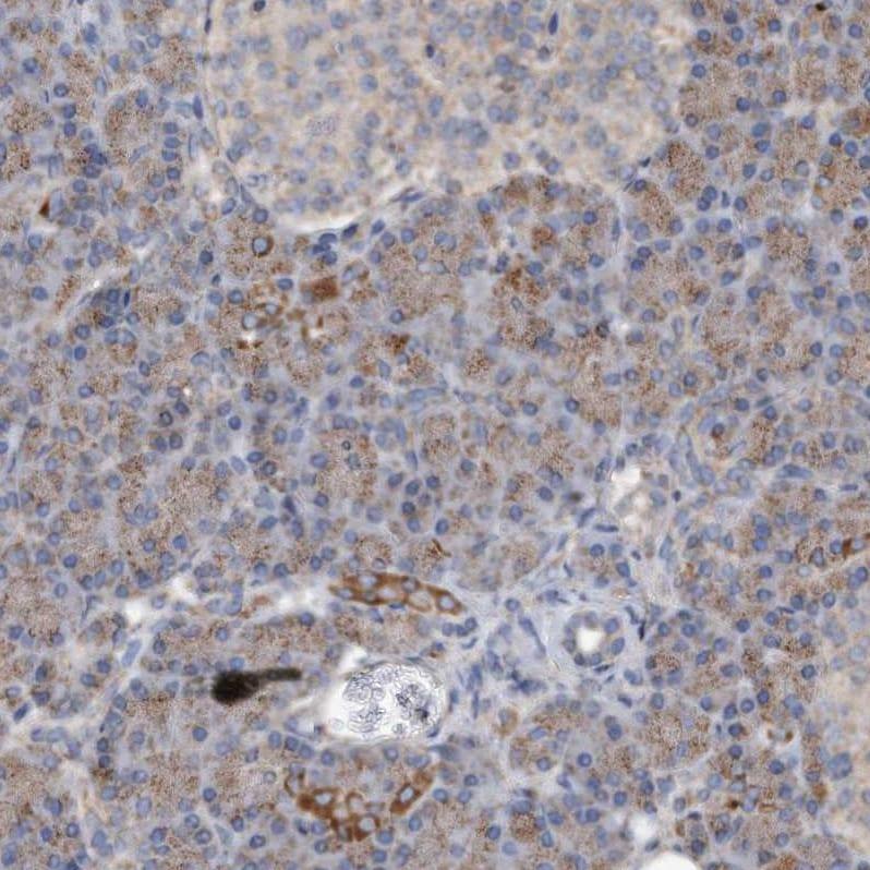 DUSP22 Antibody in Immunohistochemistry (IHC)