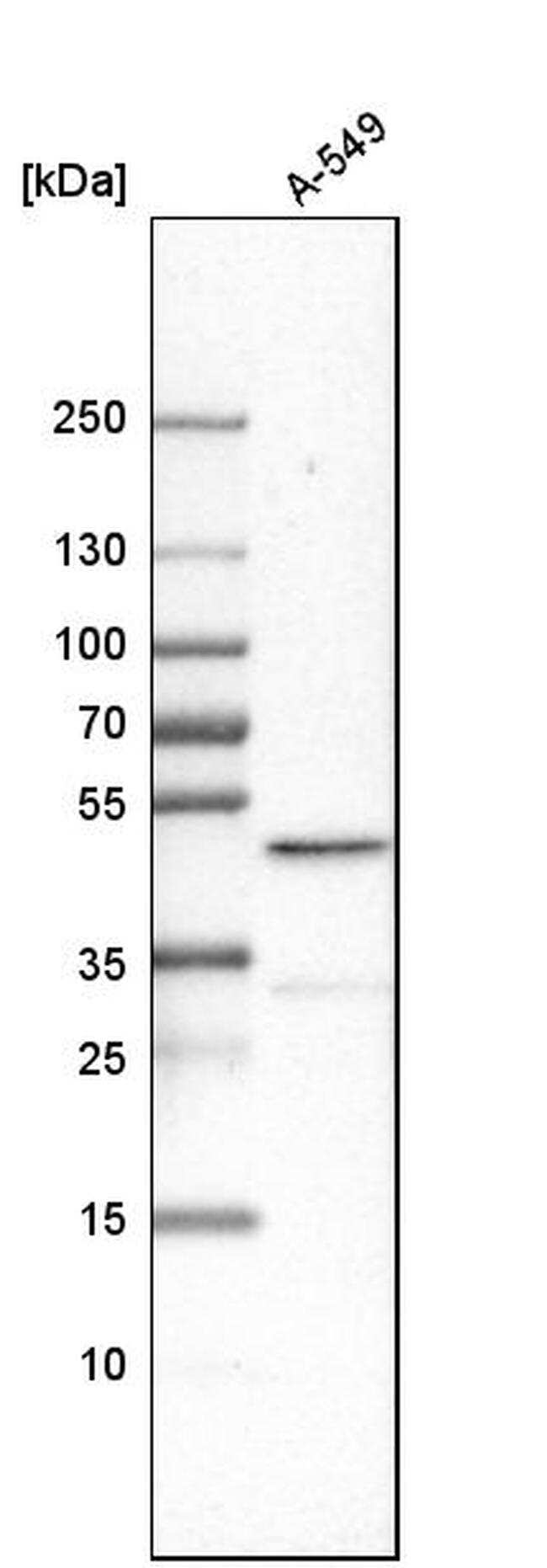 CBX8 Antibody in Western Blot (WB)