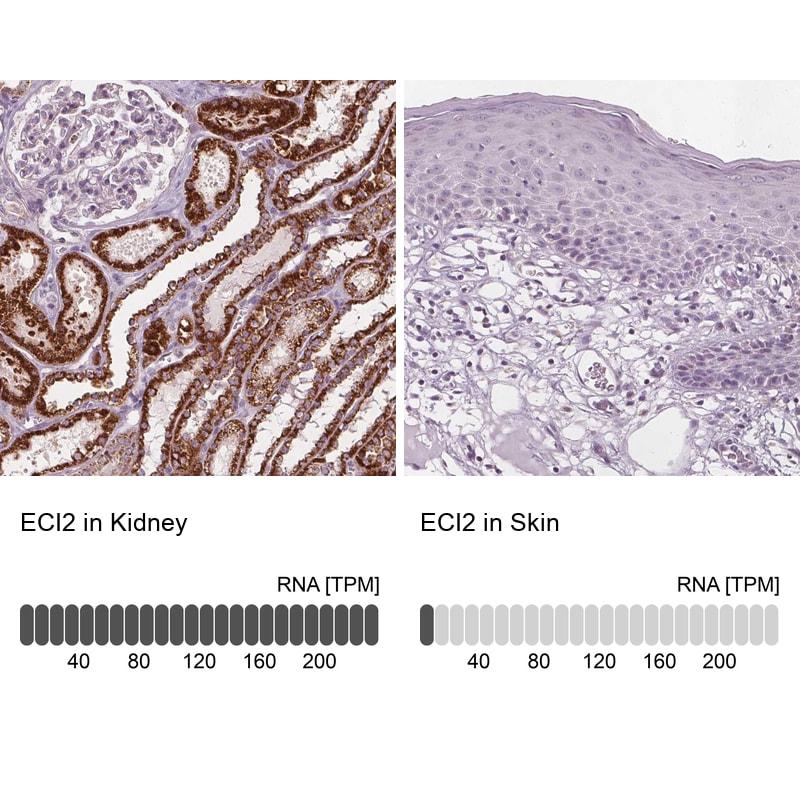 PECI Antibody in Immunohistochemistry (IHC)