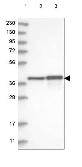 PECI Antibody in Western Blot (WB)