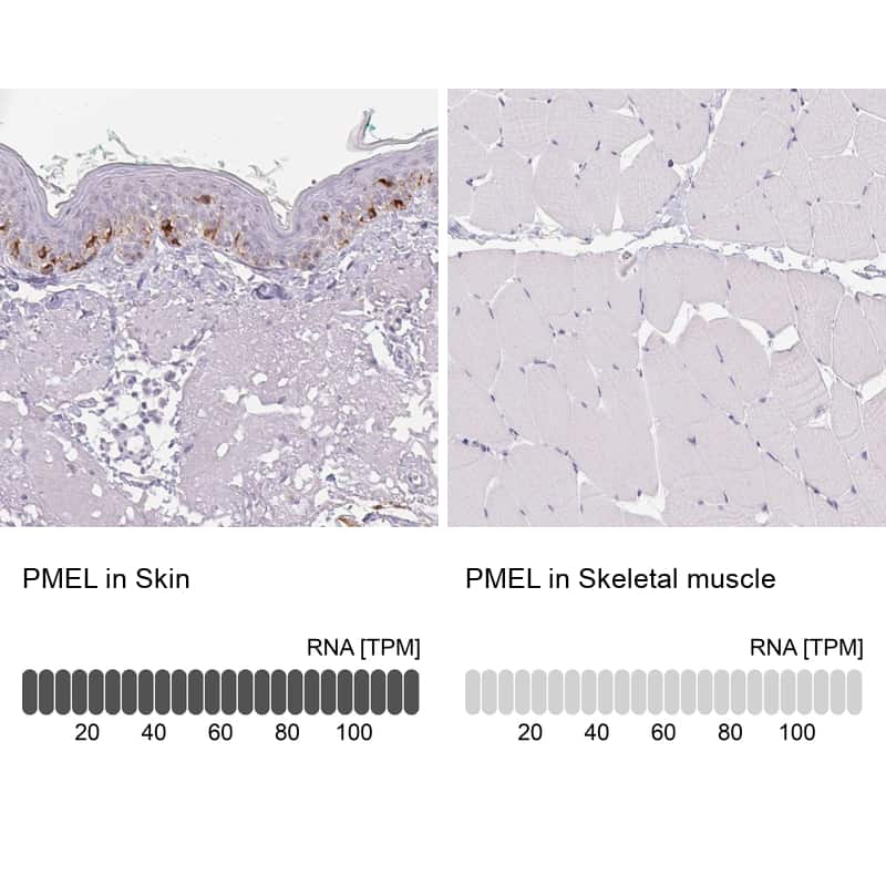 PMEL Antibody in Relative expression