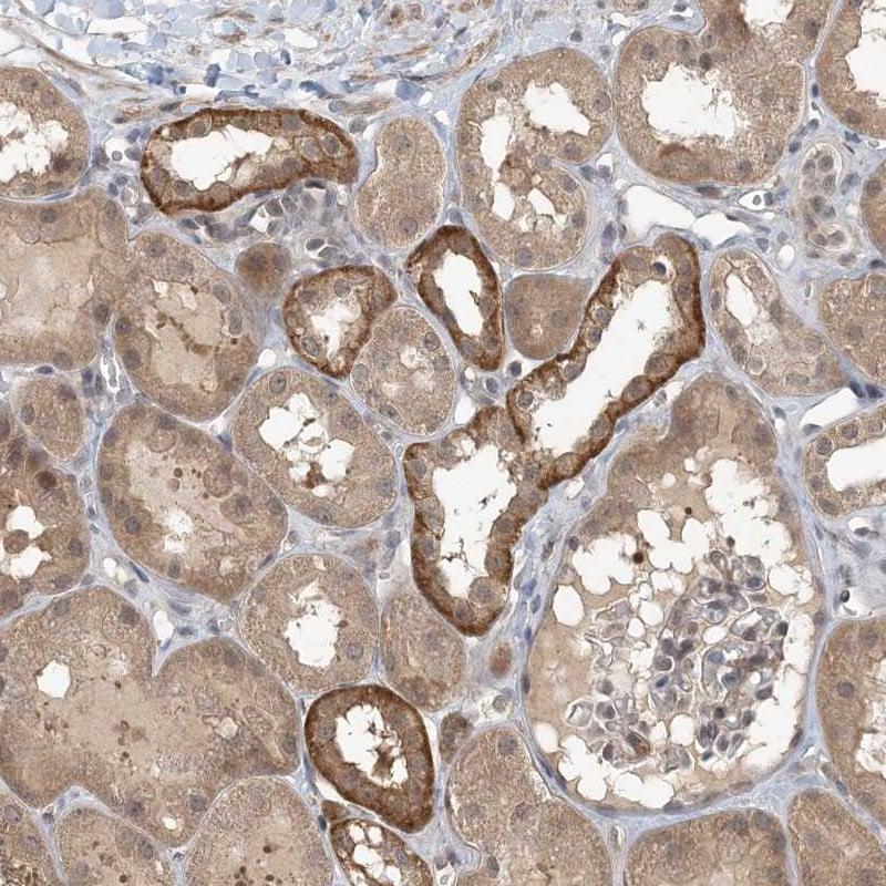ZC3H12A Antibody in Immunohistochemistry (IHC)