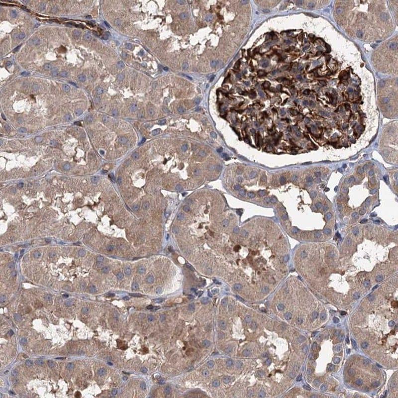PKN2 Antibody in Immunohistochemistry (IHC)