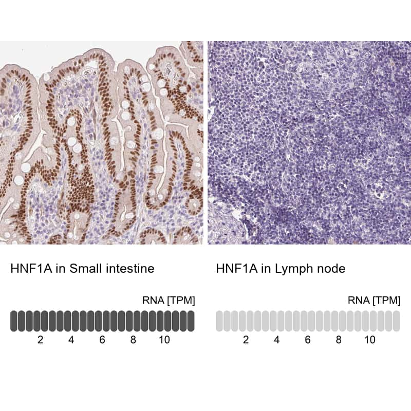 HNF1A Antibody in Relative expression