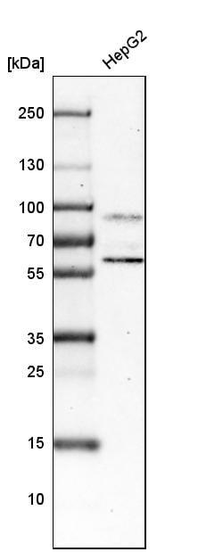 HNF1A Antibody in Western Blot (WB)