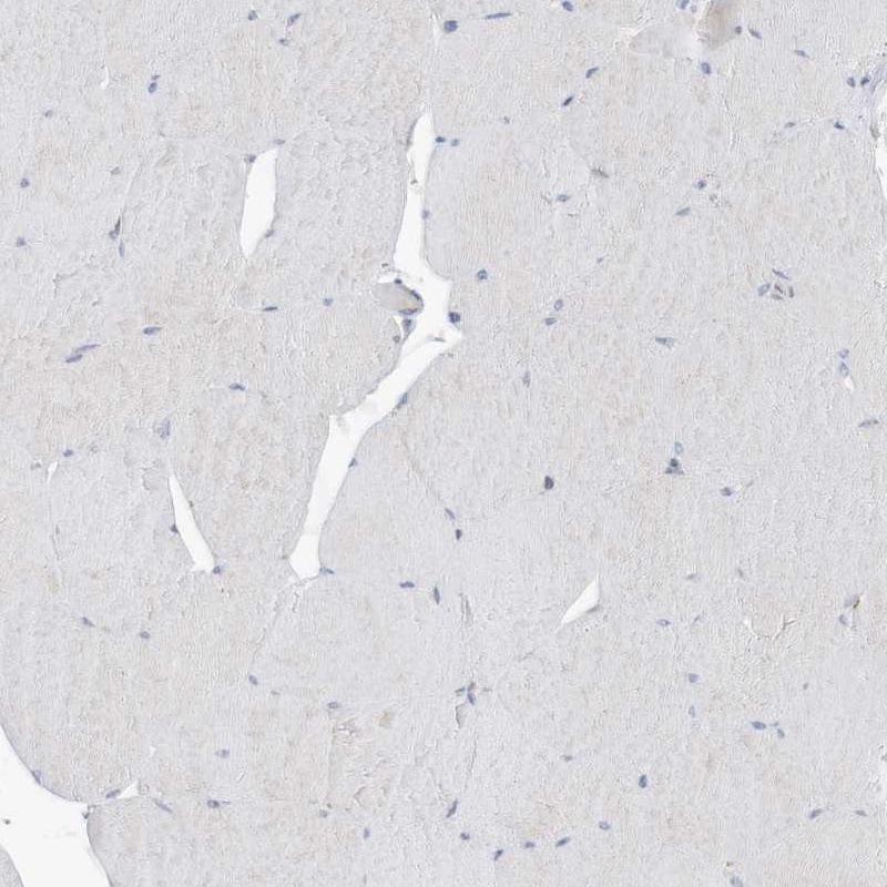 ASCT2 Antibody in Immunohistochemistry (IHC)