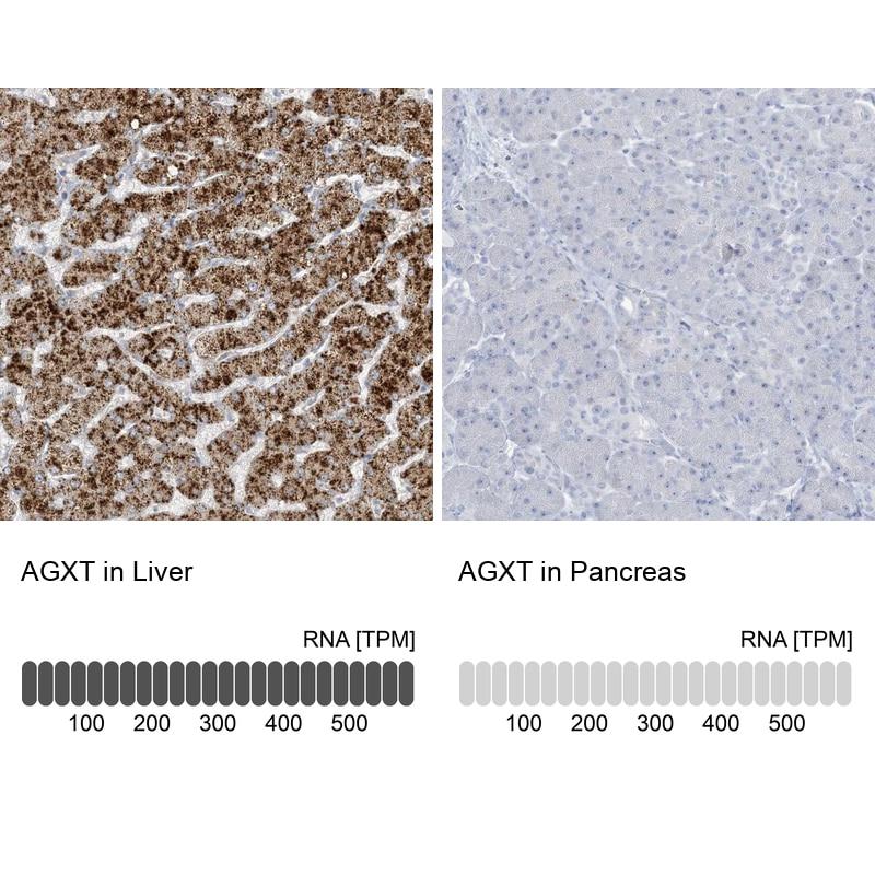 AGXT Antibody in Immunohistochemistry (IHC)