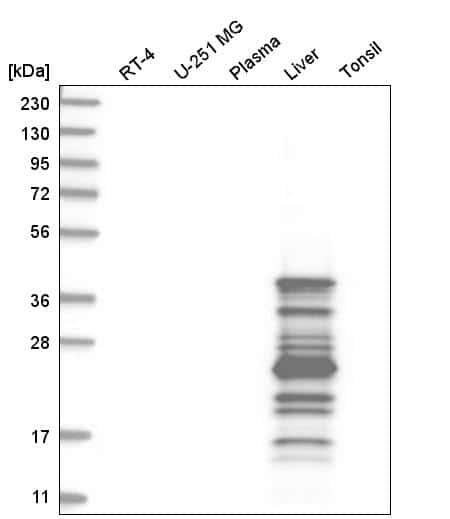 AGXT Antibody in Western Blot (WB)