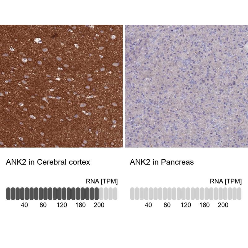Ankyrin B Antibody in Relative expression