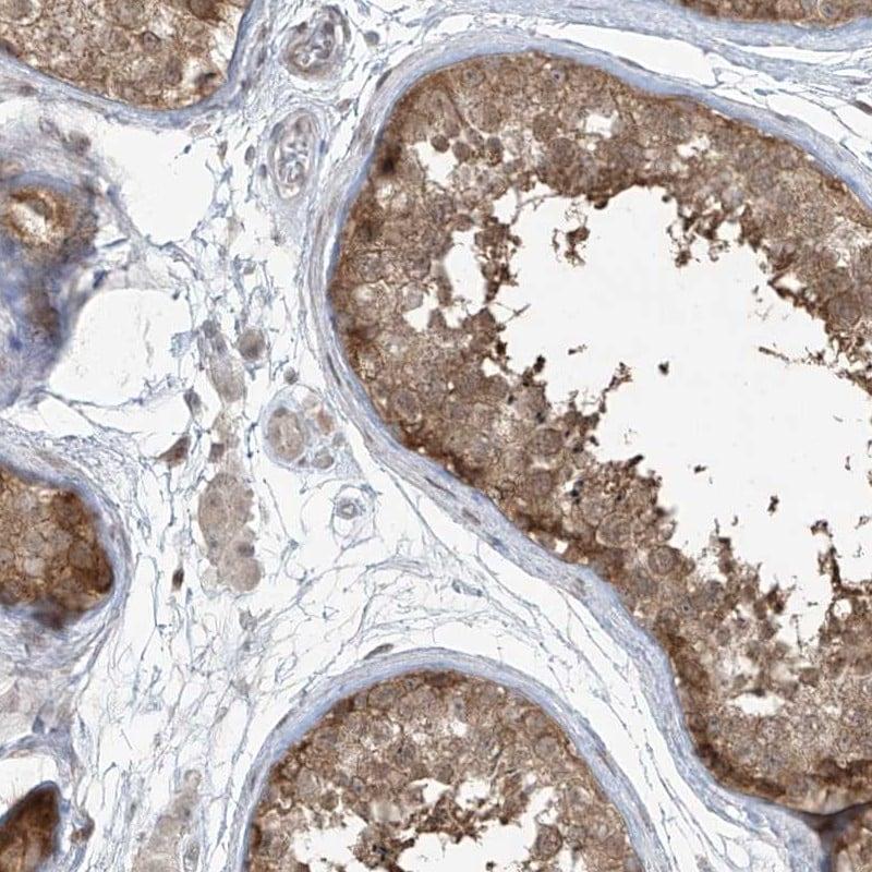 PPAT Antibody in Immunohistochemistry (IHC)