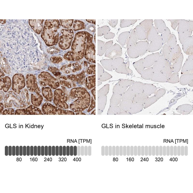 Glutaminase Antibody in Relative expression