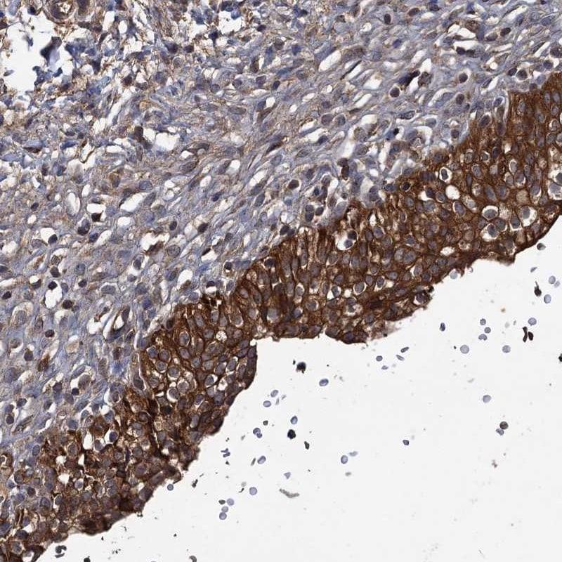 GCLC Antibody in Immunohistochemistry (IHC)
