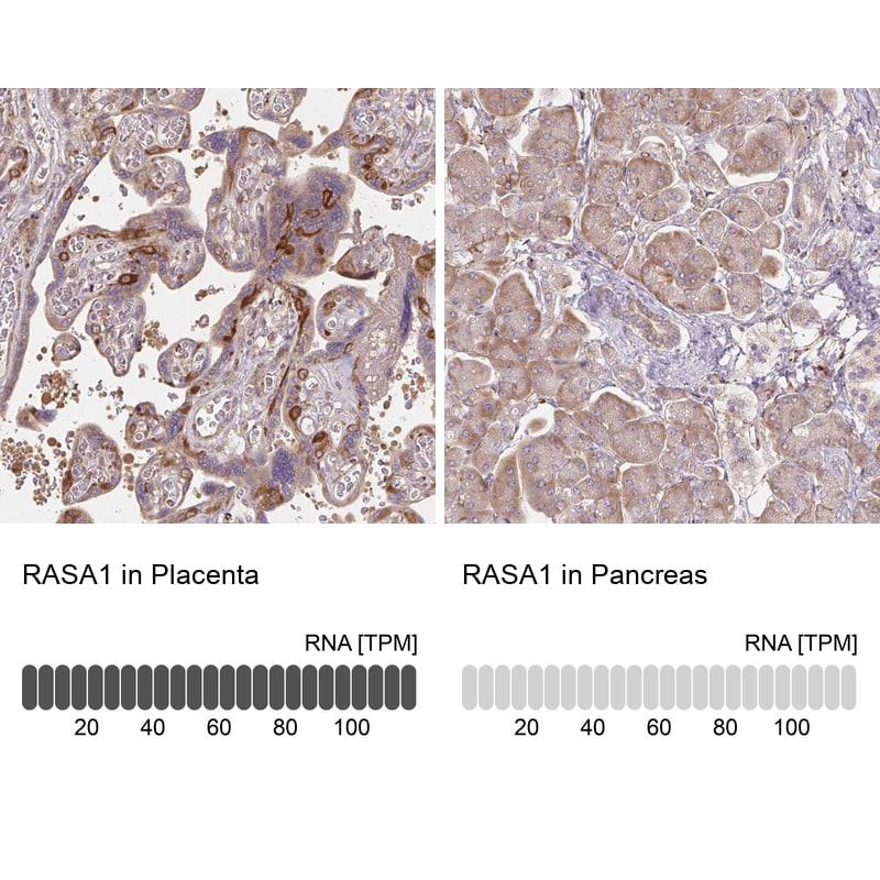 RASA1 Antibody in Relative expression