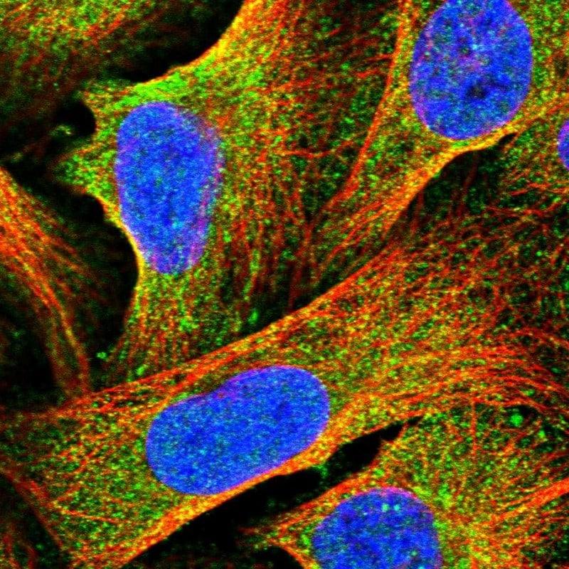HOMER1 Antibody in Immunofluorescence (IF)