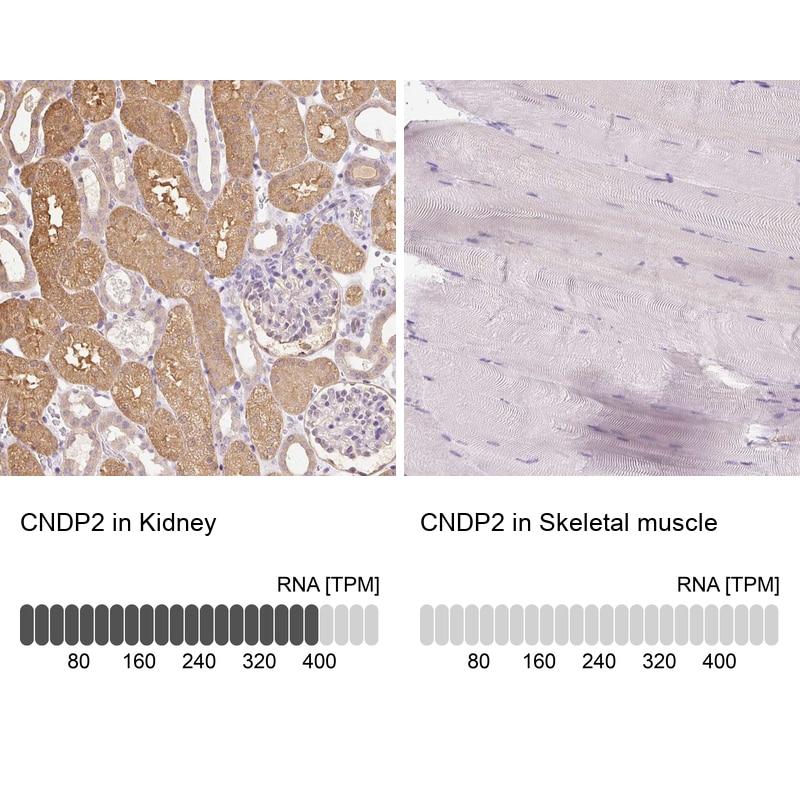 CNDP2 Antibody in Immunohistochemistry (IHC)