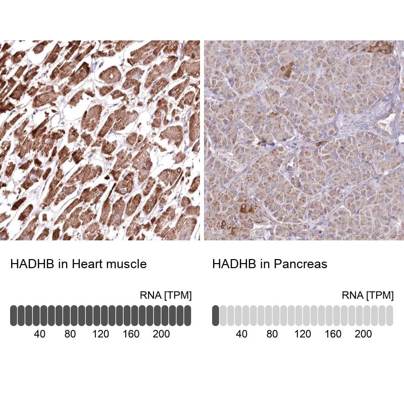 HADHB Antibody in Relative expression