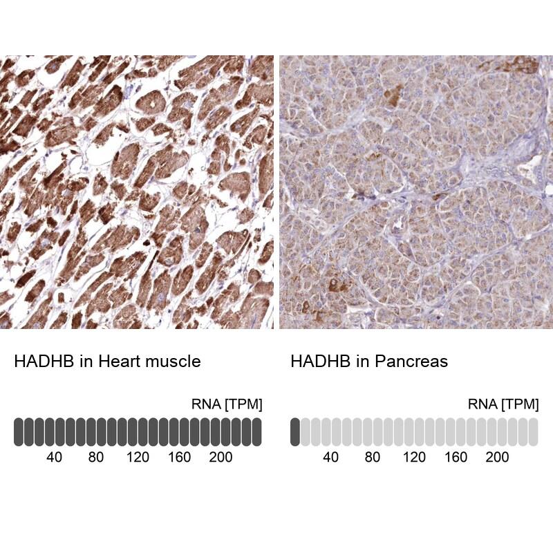 HADHB Antibody in Immunohistochemistry (IHC)