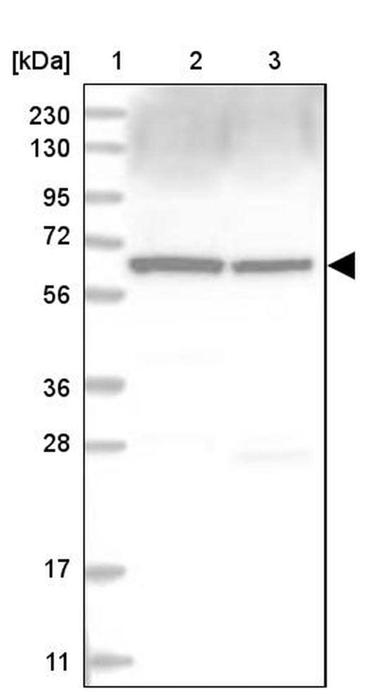 COPD Antibody in Western Blot (WB)