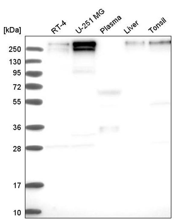 JARID1C Antibody in Western Blot (WB)
