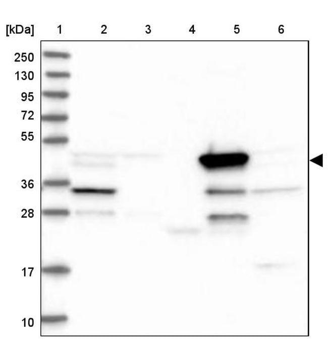 BHMT Antibody in Western Blot (WB)