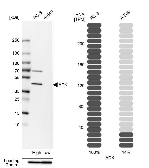 Adenosine Kinase Antibody in Relative expression