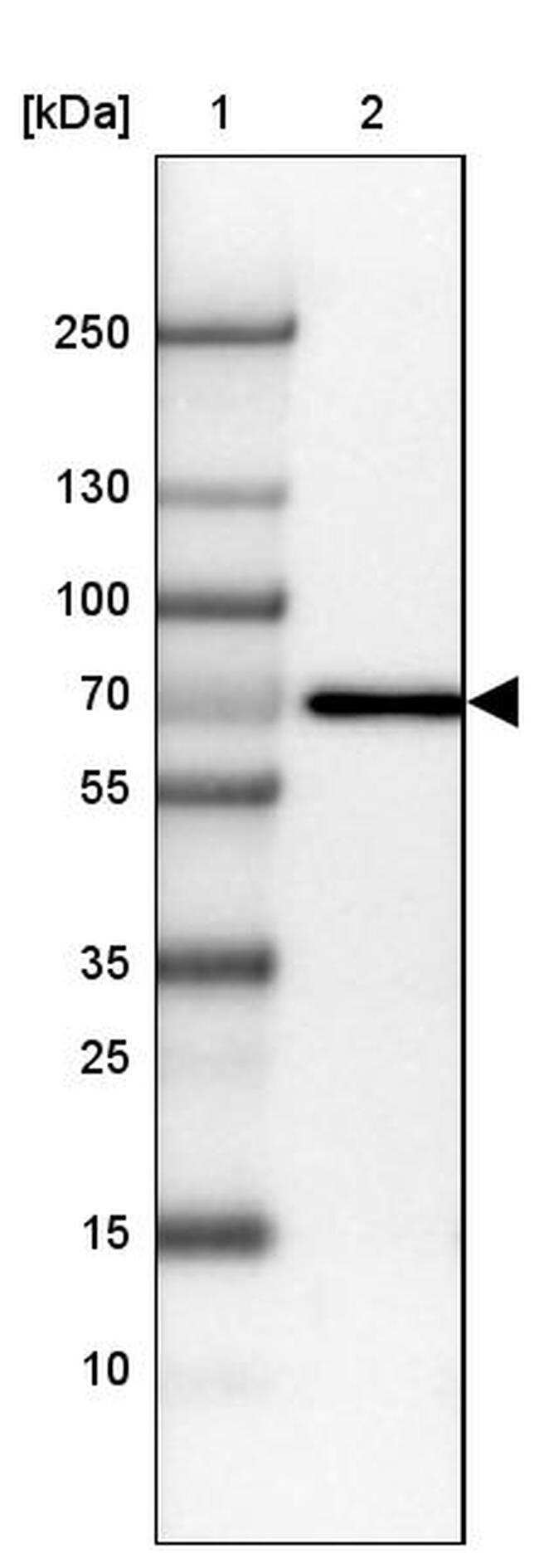 Placental Alkaline Phosphatase Antibody in Western Blot (WB)