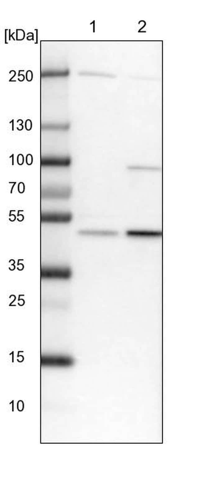 BLMH Antibody in Western Blot (WB)