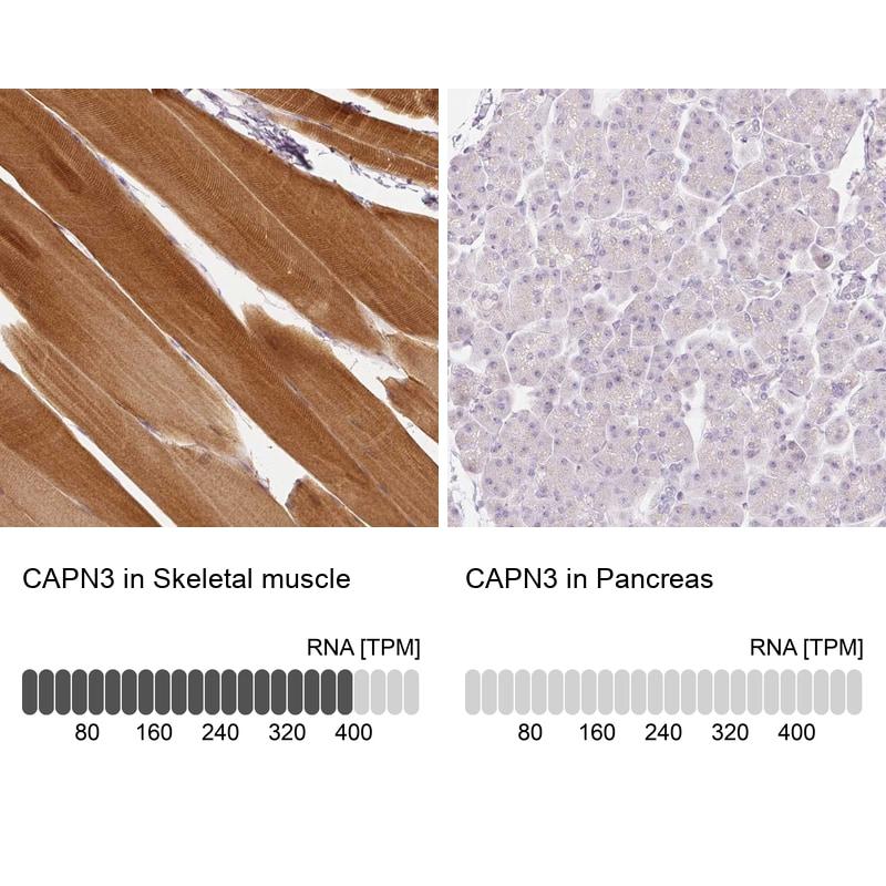 Calpain 3 Antibody in Relative expression