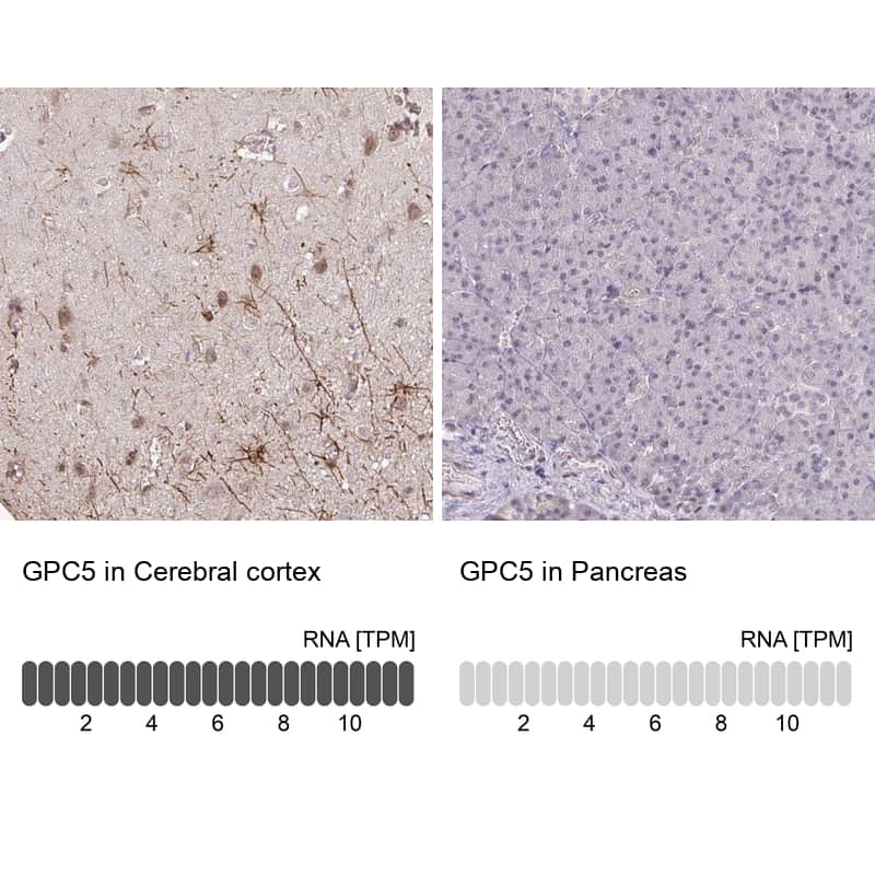 Glypican 5 Antibody in Immunohistochemistry (IHC)