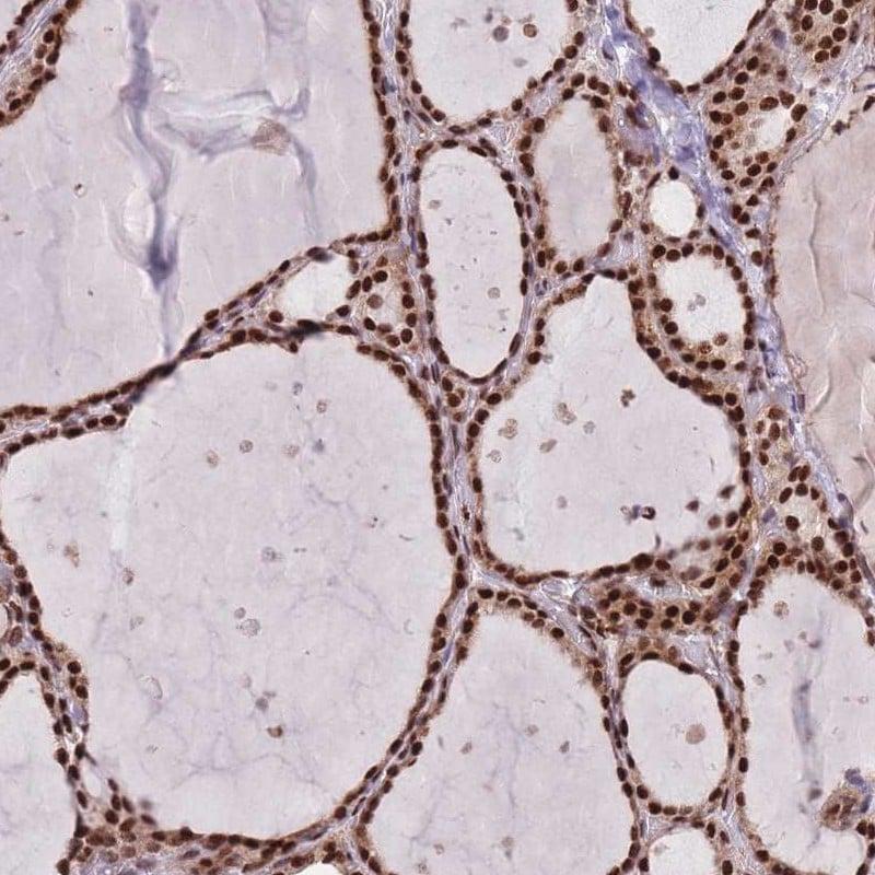 DNAJC3 Antibody in Immunohistochemistry (IHC)