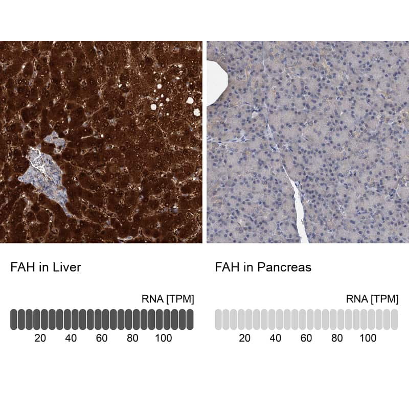 FAH Antibody in Immunohistochemistry (IHC)