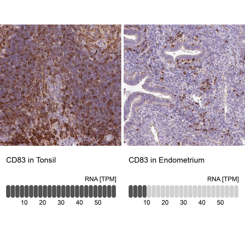 CD83 Antibody in Immunohistochemistry (IHC)