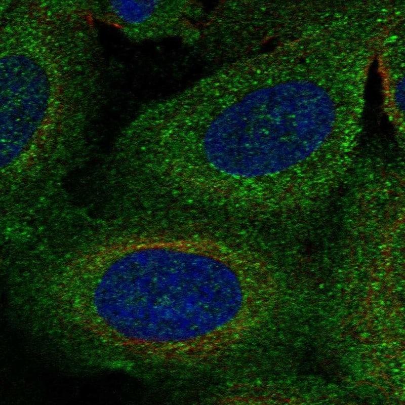 TBC1D2B Antibody in Immunocytochemistry (ICC/IF)